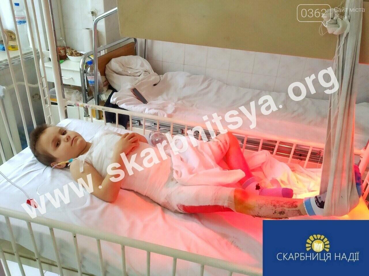 Потребує допомоги у лікуванні хлопчик з Рівненщини, який отримав значні опіки тіла, фото-1