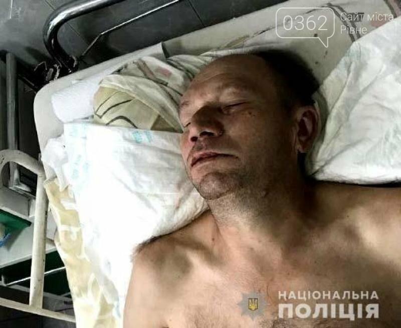 Чоловік, якого знайшли травмованим на Міцкевича у Рівному, помер (ФОТО 18+), фото-1